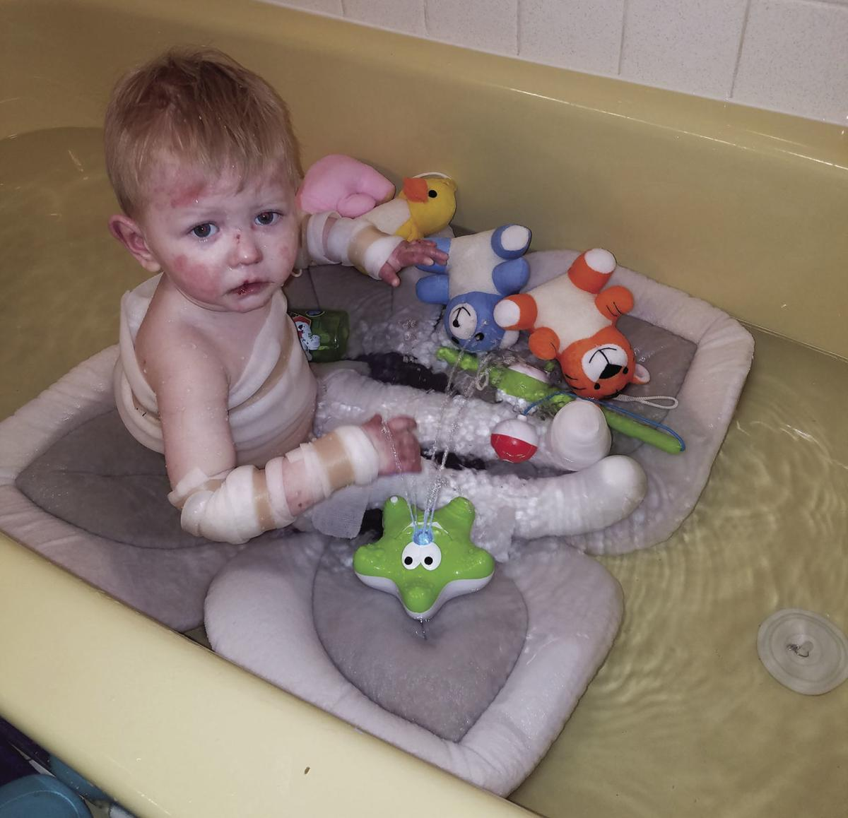 Waterloo toddler with painful, incurable disease champions ...