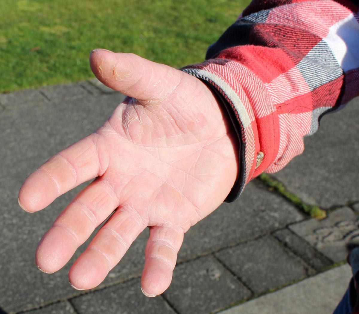 FisherPoet Tom Hilton's hands