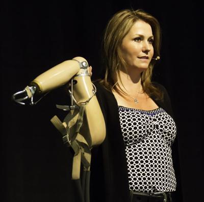 Woman loses arm, gains life lesson