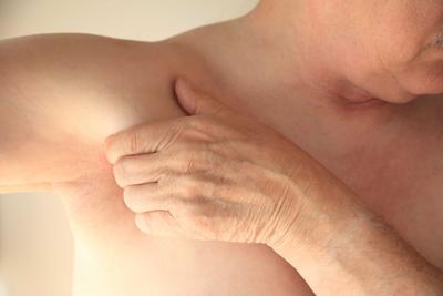 Inflamación   benigna  de nódulos linfáticos