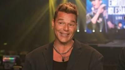 Ricky Martin revela qué pasó con su rostro tras el revuelo por su última aparición
