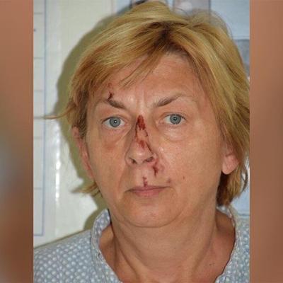 Hallan a una mujer con amnesia y golpeada en una zona remota de una isla en el Adriático