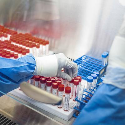 África lanza un estudio sobre anticuerpos del coronavirus