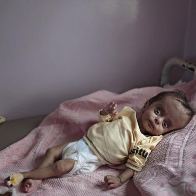 "ONU recauda ""decepcionantes"" $1,700 millones para Yemen"
