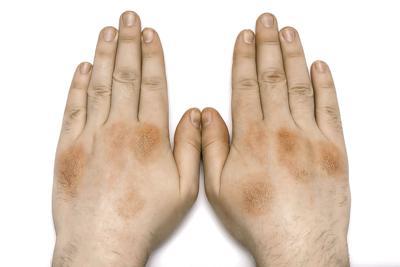 Importante conocer  sobre la psoriasis