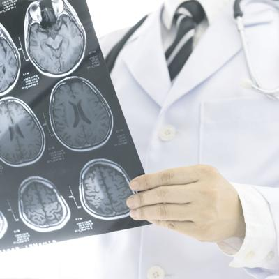 Celebran el Día Mundial de Alerta contra el Ataque Cerebral