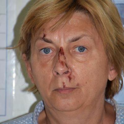 Croacia: buscan ayudar a una mujer que no recuerda quién es