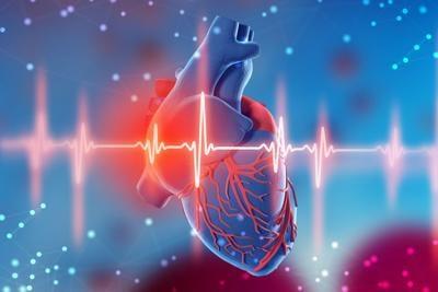 Amiloidosis Cardíaca…. ¿Qué es?