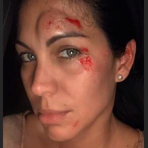 Saritza Alvarado sufre caída para evitar la de su hijo
