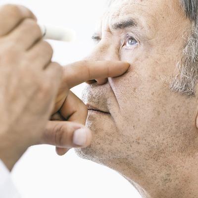 Eche un ojo al glaucoma