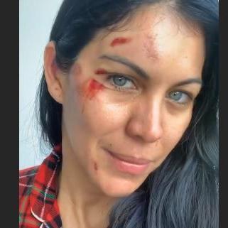 Saritza Alvarado golpe