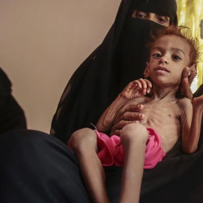 ONU: 16 millones de personas pasarán hambre en Yemen