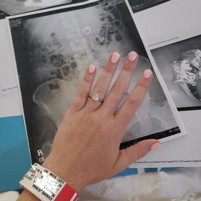 Mujer termina en el quirófano al tragar su anillo de compromiso
