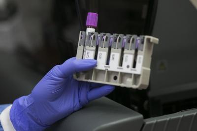 coronavirus prueba sangre