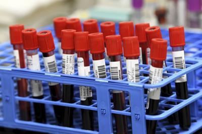 Los CDC revierten guías sobre pruebas de Covid-19