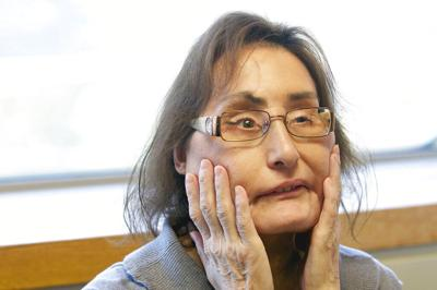 Obit Connie Culp Face Transplant