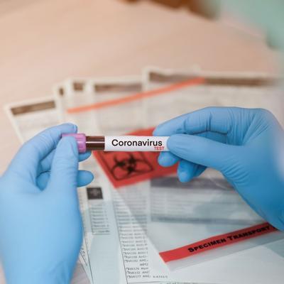 Coronavirus: Por ahora pruebas caseras no son buena idea