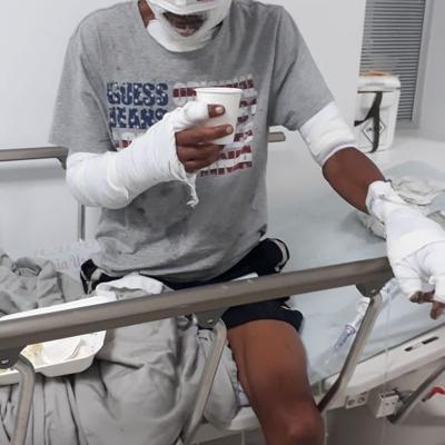 Joven sufre quemaduras al rescatar ocho perros