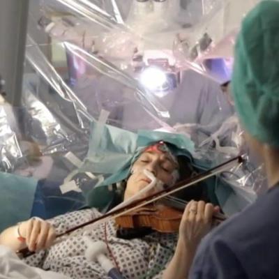 Mujer toca el violín mientras le extirpan un tumor en el cerebro