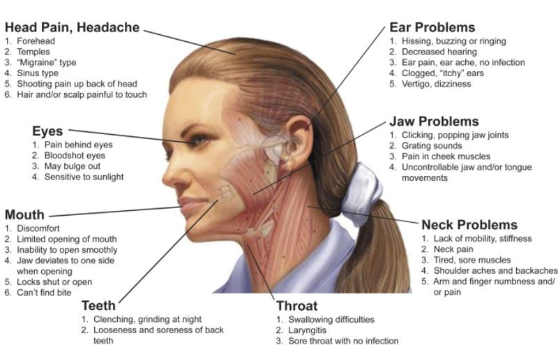 5 signs your headache may be caused by tmj news emporiagazette com Eyebrow Chart