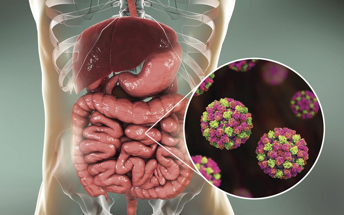 Newman Regional Health warns of uptick in norovirus | Free