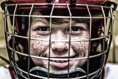 Childhood Concussions Impair Brain >> The Hard Hitting Truth About Kids Sports And Concussions Articles