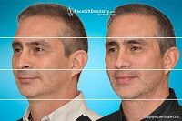changing-shape-face.jpg