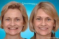 dental-facelift-vs-surgical-facelift-550 (1).jpg