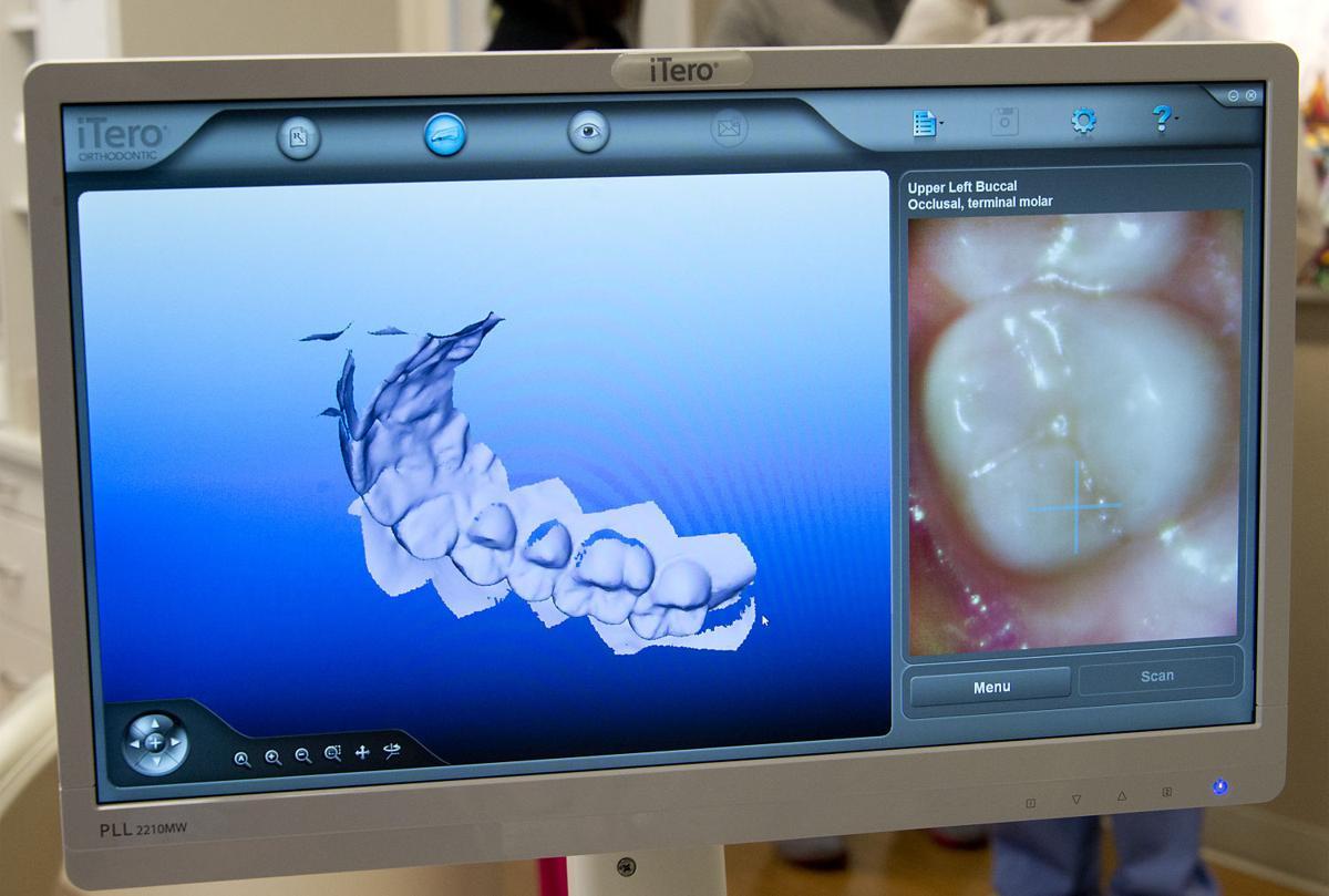 sy 3d dental printer 4 ld