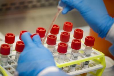 Virus Outbreak US Testing