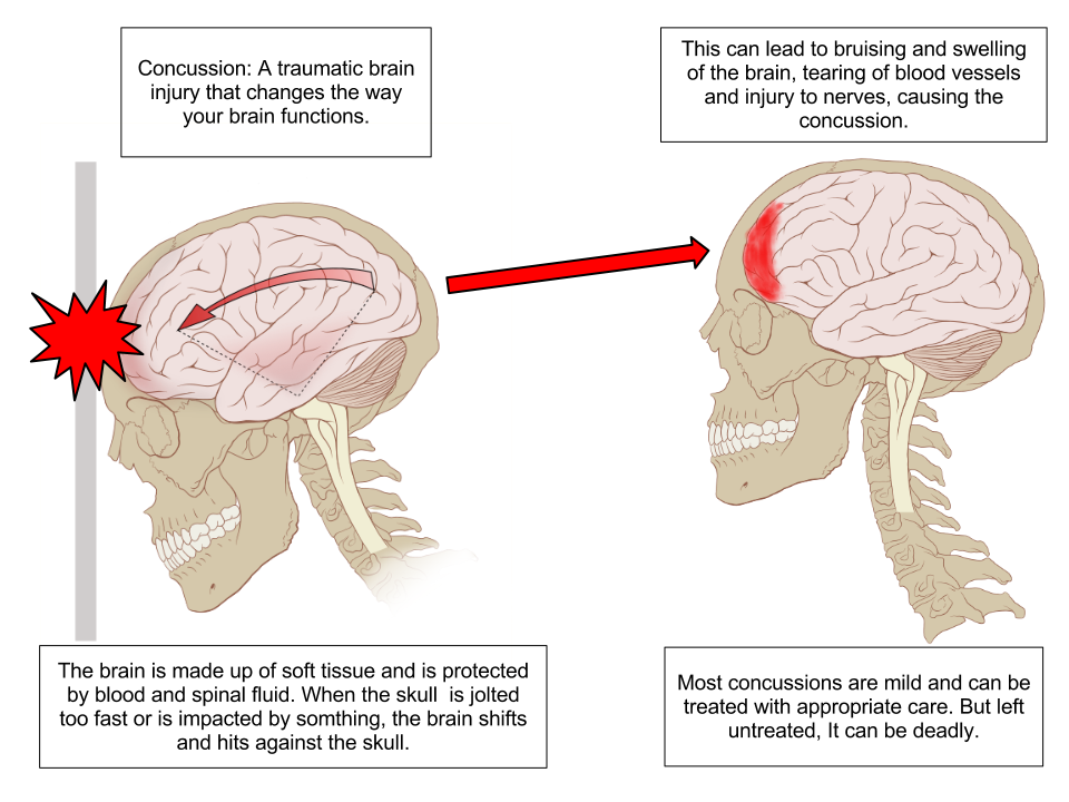 Concussion Anatomy