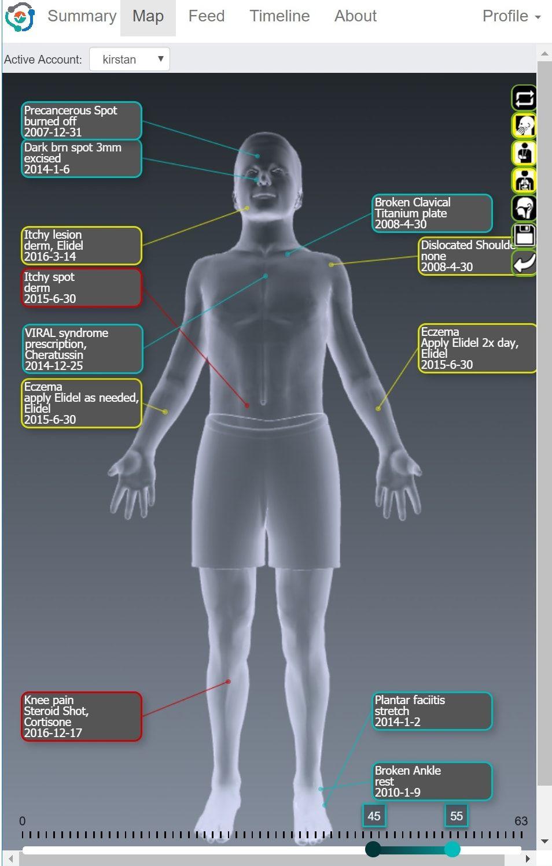 mCharts Body Map
