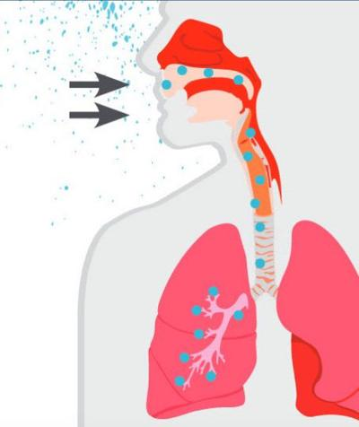Legionnaires disease illustration.jpg