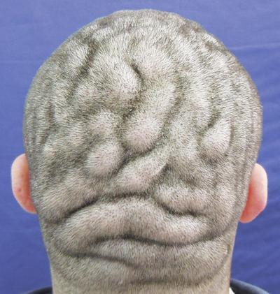 Rare Disease Leaves People With Brain Like Ridges On Their Scalp