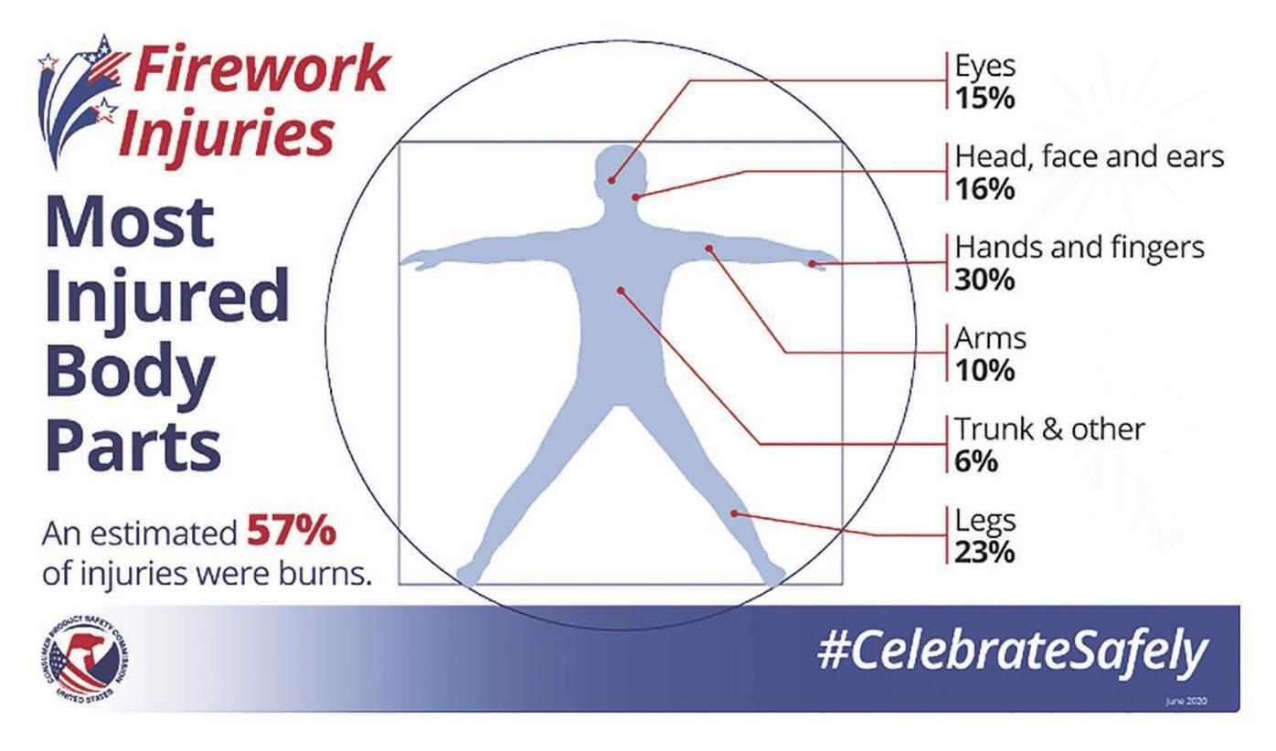 Fireworks injuries (2020)