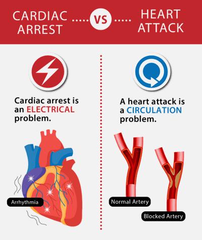Cardic arrest vs heart attach