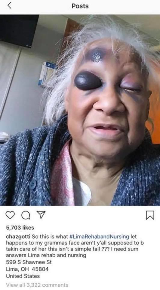 Elderly Woman Investigation at Lima Rehab.jpg