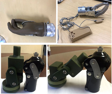Jaipur Foot and Santa Clara University collaborate on Myoelectric Prosthetic Hand Project