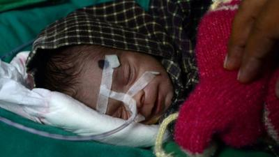 'Miracle survival' for newborn girl found in Indian grave