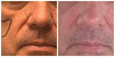 Aging male faces benefit from rejuvenation, too
