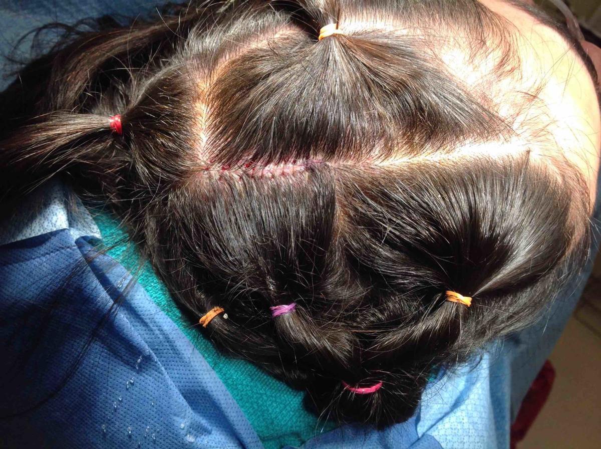 Key Cosmetic Concerns - Teen Bald Spots