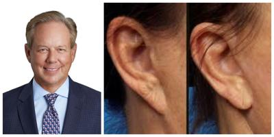 """Pixie Ear"" is a common complication -- and correctable"
