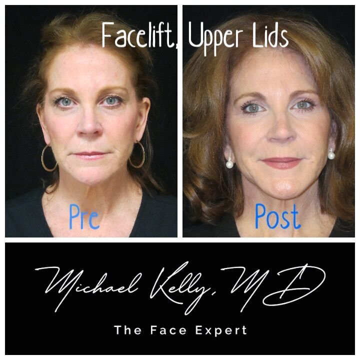 Fat grafting is a facelift essential, creating a natural, rejuvenated look