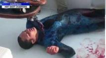 Shark attack victim