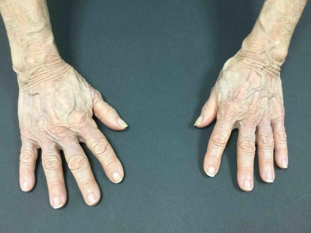hand rejuvenation 2