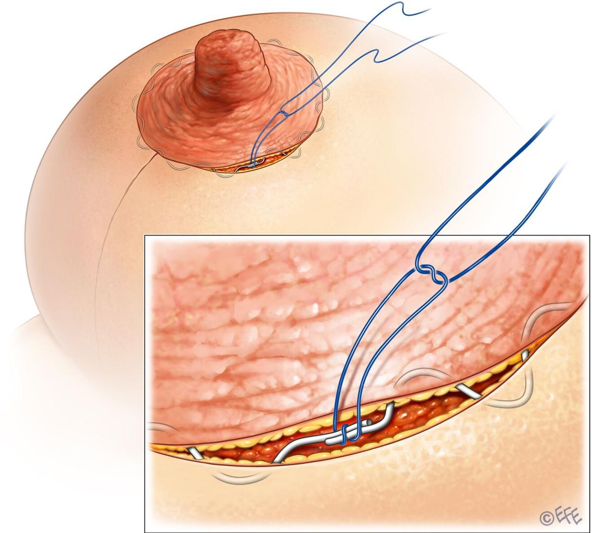 Size of post-pregnancy areolas can be adjusted with surgery