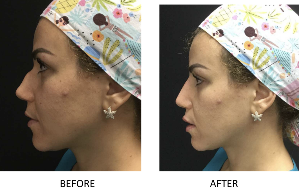 Liquid rhinoplasty is a quick and safe alternative to the surgical alternative