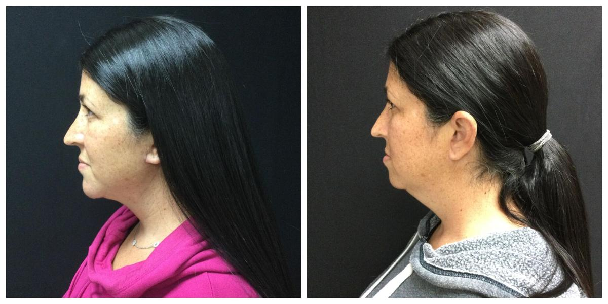 """""""Weak"""" chin a relatively simple fix with filler or implant"""