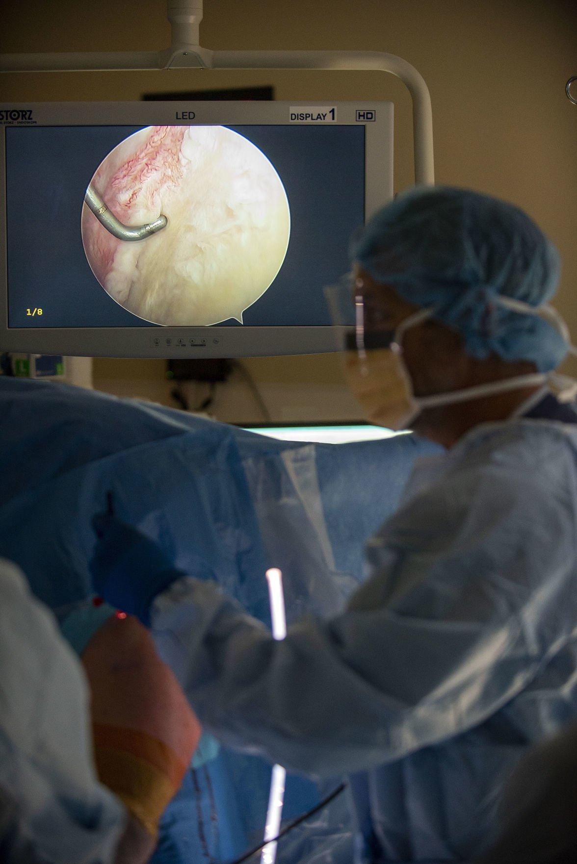 Rotator cuff surgery