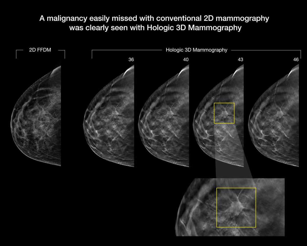 breast tomosynthesis images Digital breast tomosynthesis (also known as 3d mammography) was approved by the fda in february 2011 it is a modification of the current 2d (digital) mammography that, instead, produces a.